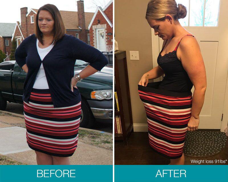 orbera weight loss balloon reviews