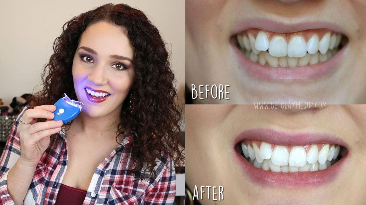 la smile teeth whitening reviews