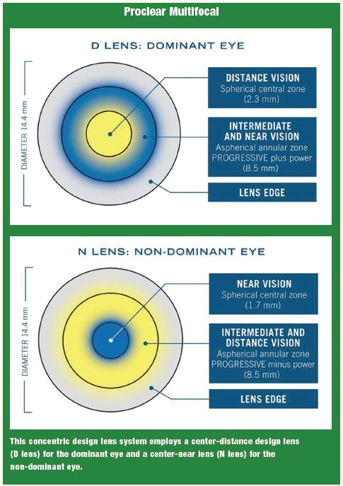 proclear multifocal toric lenses for astigmatism reviews