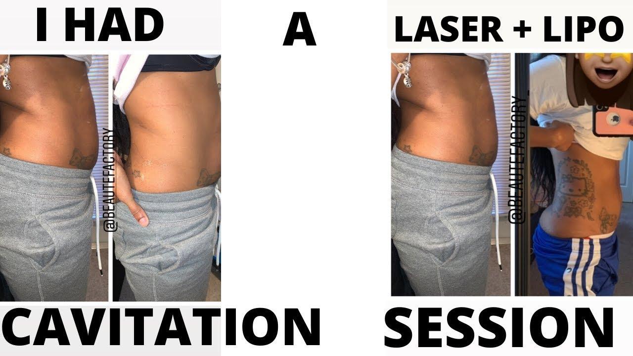 non surgical laser lipo reviews