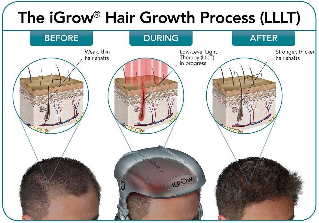 laser hair regrowth treatment reviews