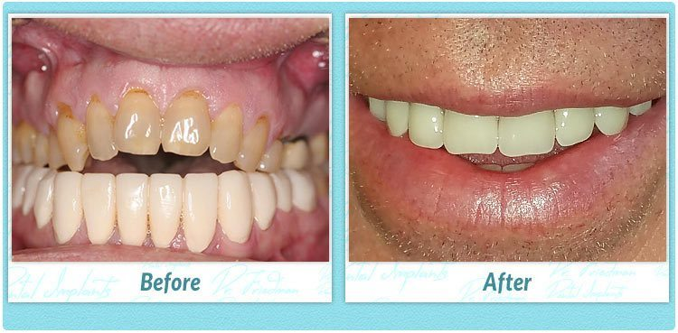 one day dental implants reviews